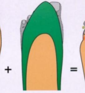 Modul 8: Diabetischer Fuß